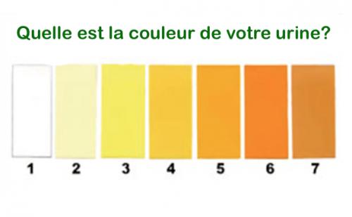 Chaque couleur de votre urine signifie quelques chose