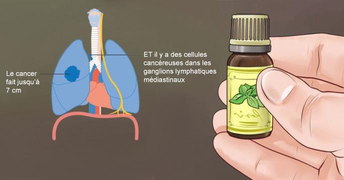 La V 233 Rit 233 Sur Le Cancer Et Les Huiles Essentielles Ce Qu