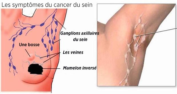 Le cancer du sein en 15 photos - Magicmamancom