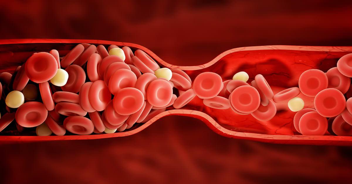 blood-clot-1