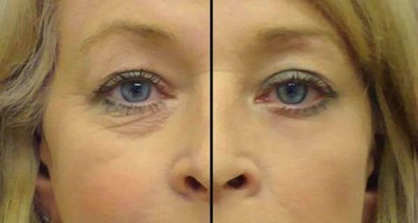 anti rides yeux efficace fait maison