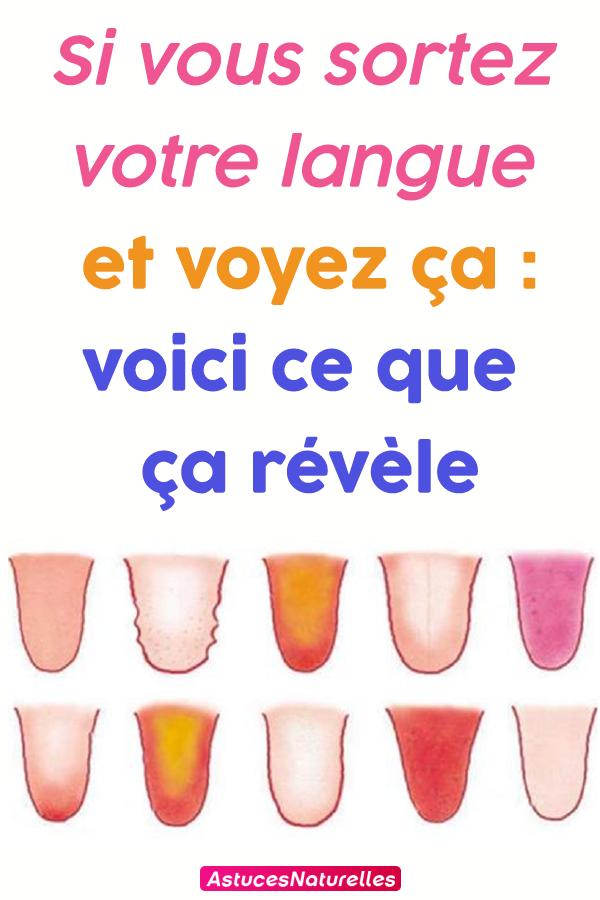 Si vous sortez votre langue et voyez ça : voici ce que ça révèle