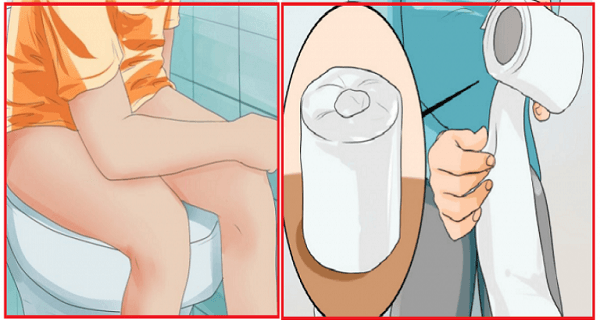 Treatment-Of-Hemorrhoids-At-Home-One-Ingredient-And-You're-Cured