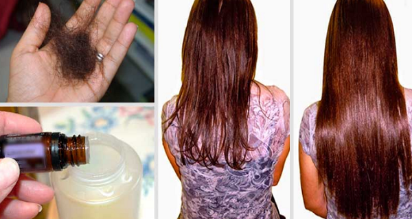 Add-These-Three-Ingredients-To-Your-Shampoo-And-Say-Goodbye-To-Hair-Loss-Forever