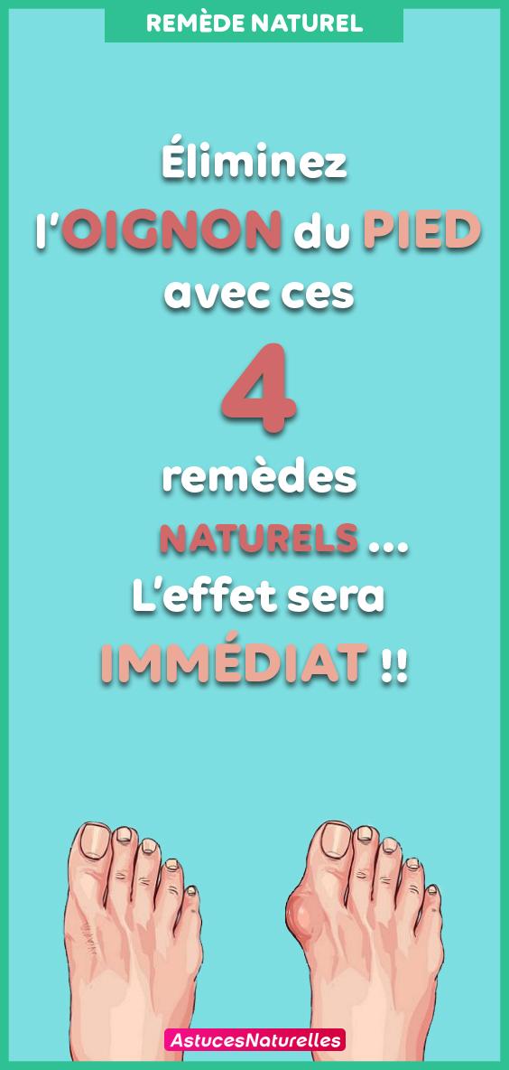 Éliminez l'oignon du pied avec ces 4 remèdes naturels … L'effet sera Immédiat !!