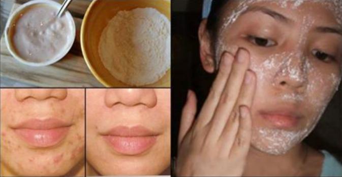 Ces 2 ingrédients magiques gomment les tâches, les cicatrices d'acné et les rides dès la deuxième utilisation !