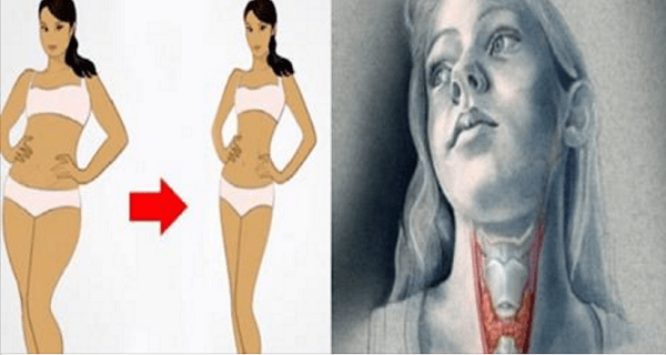 USE-THIS-MIRACULOUS-DRINK-TO-CURE-YOUR-THYROID-GLAND-AND-LOSE-WEIGHT-MUCH-FASTER