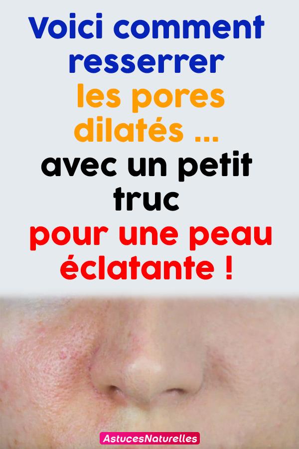 Voici comment resserrer les pores dilatés…avec un petit truc pour une peau éclatante !
