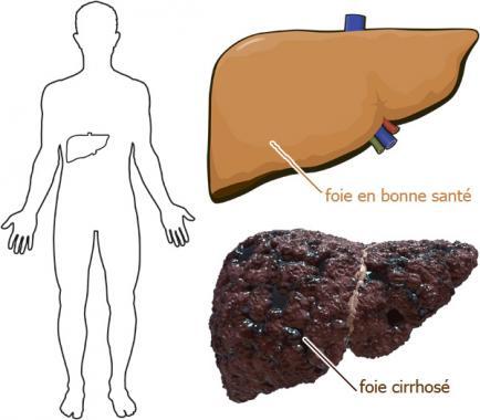 foie-cirrhose-fr_en-images