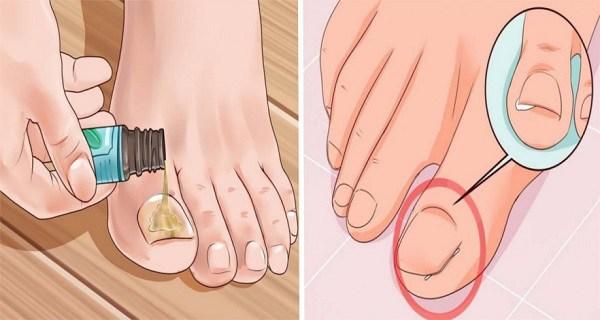 voici une nouvelle astuce pour se d barrasser des ongles incarn s soigner son ongle incarn sans. Black Bedroom Furniture Sets. Home Design Ideas