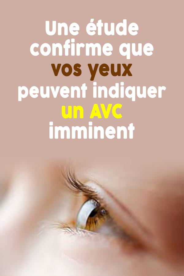 Une étude confirme que vos yeux peuvent indiquer un AVC imminent