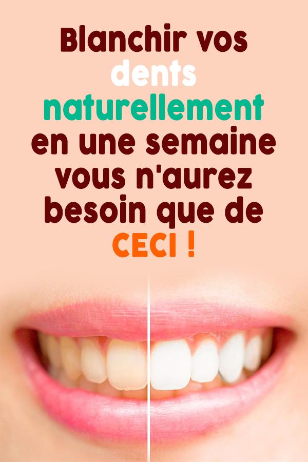 Blanchir vos dents naturellement en une semaine…vous n'aurez besoin que de CECI !