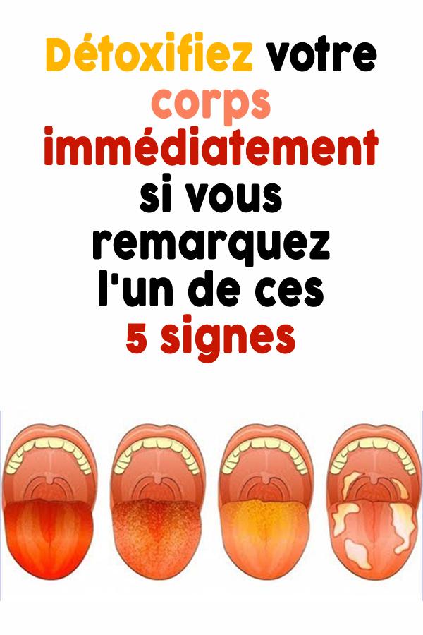 Détoxifiez votre corps immédiatement si vous remarquez l'un de ces 5 signes…