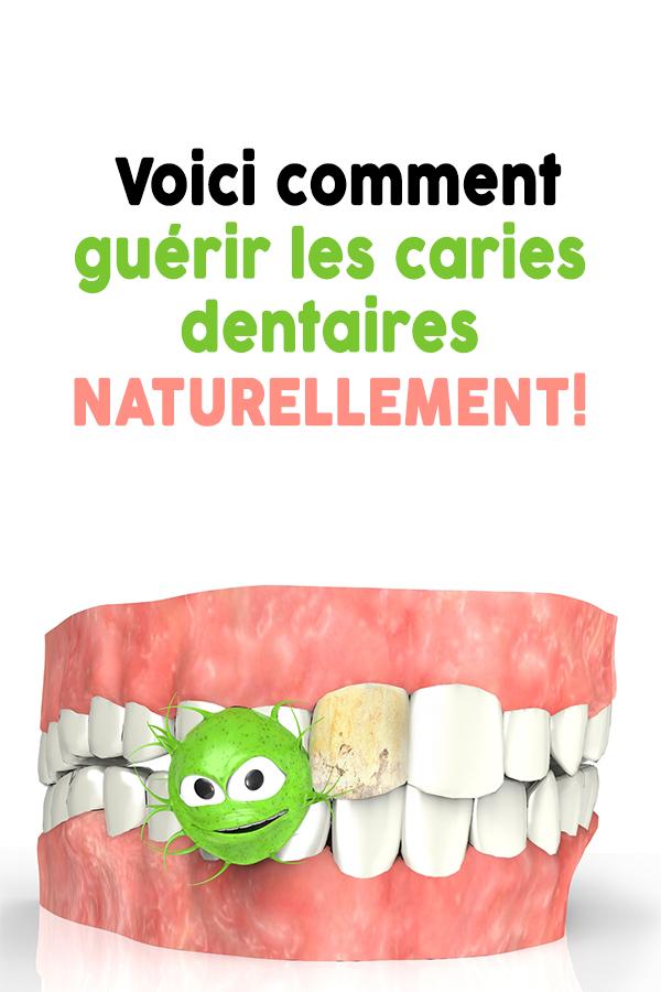 Voici comment guérir les caries dentaires NATURELLEMENT!