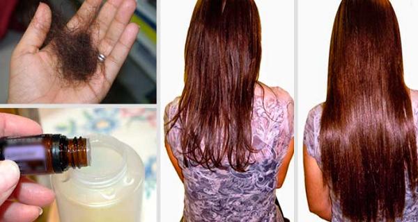 shampoing contre chute de cheveux femme