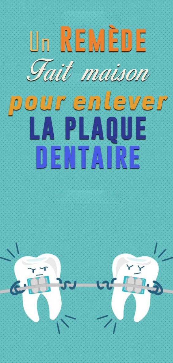 Voici comment éliminer la plaque dentaire en 5 minutes naturellement…Vous n'aurez plus besoin de dentiste !