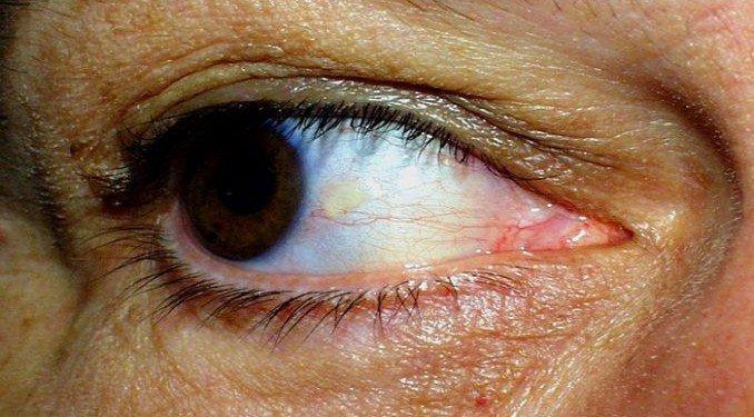une-etude-confirme-que-vos-yeux-peuvent-indiquer-un-AVC-imminent-678x375