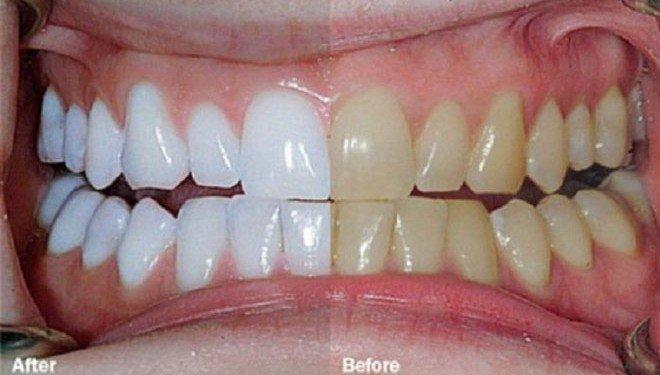 Il-mélange-2-ingrédients-et-les-met-sur-ses-dents.-Résultats-incroyables--660x375