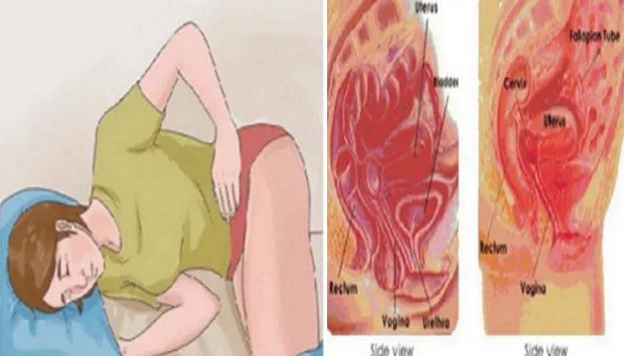 endometrosis-700x400