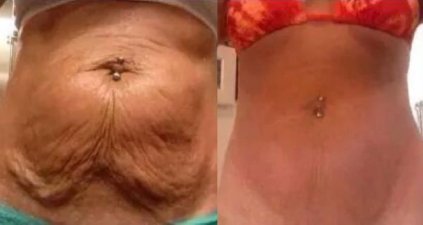How-To-Make-Your-Saggy-Stomach-Skin-Smooth-Naturally-