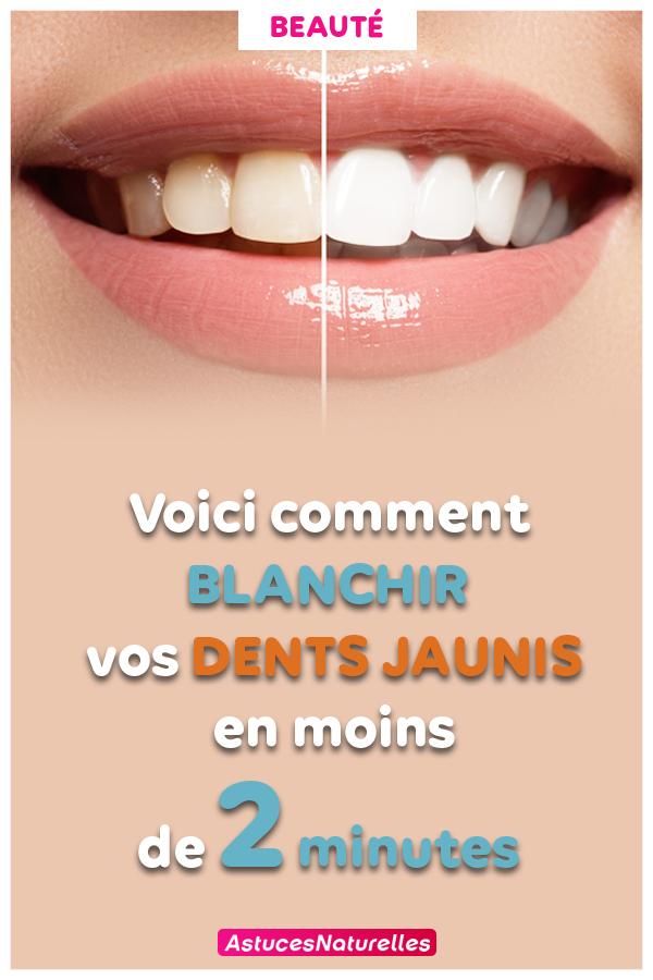 Résultat garanti ! Voici comment blanchir vos dents jaunis en moins de 2 minutes …