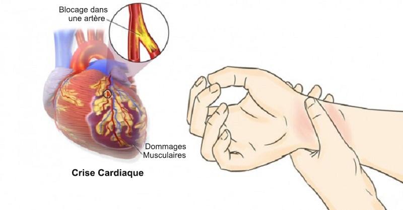 80% des crises cardiaques pourraient être évitées si tout le monde pouvait détecter ces 5 Signes avant-coureurs…