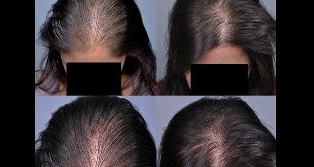Pour des cheveux qui poussent rapidement, essayez le