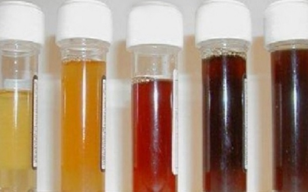 Ce-que-la-couleur-de-votre-urine-révèle-sur-votre-santé