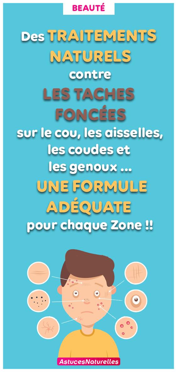 Effacez les taches foncées sur le cou, les aisselles, les coudes, les genoux avec ces traitements naturels … Une Formule Adéquate pour chaque Zone !!
