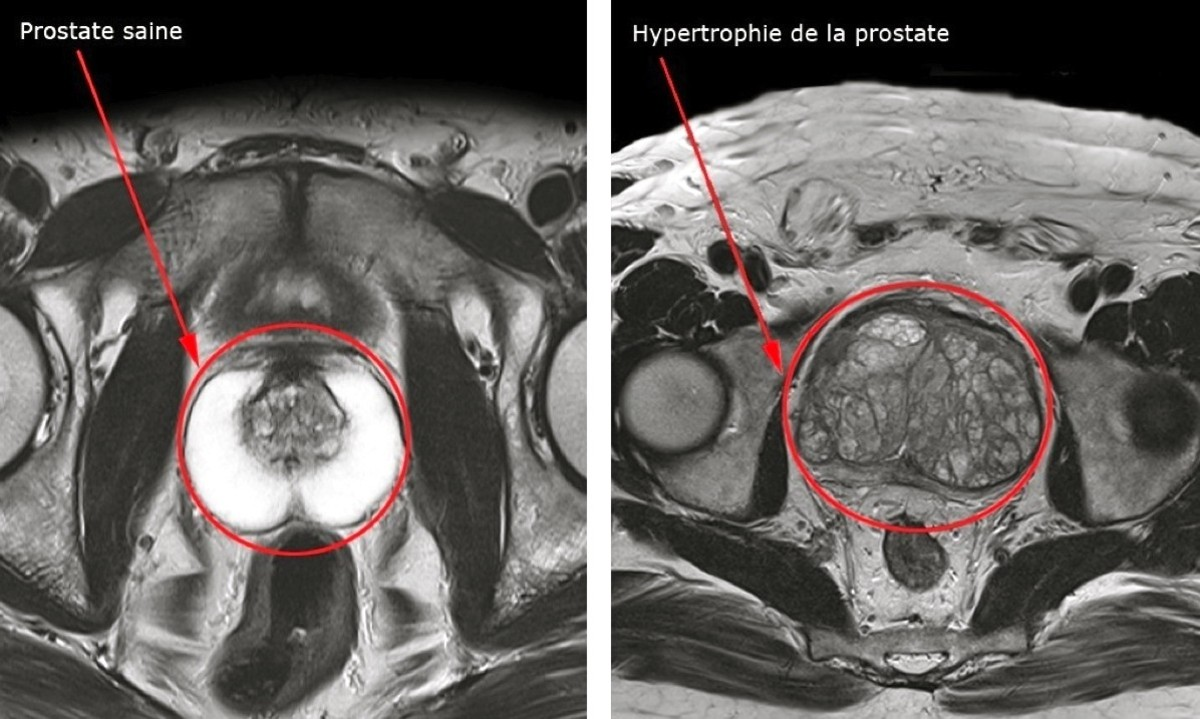 prostate_saine_-_hypertrophie