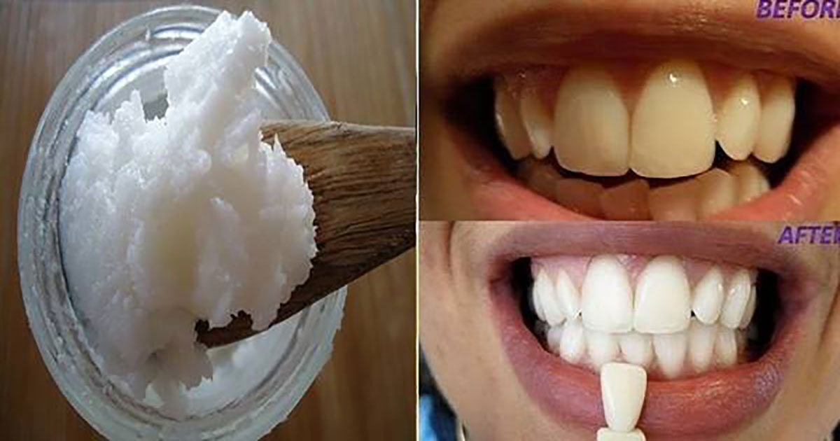 say-goodbye-bad-breath-plaque-tartar-kill-harmful-bacteria-mouth-one-ingredient
