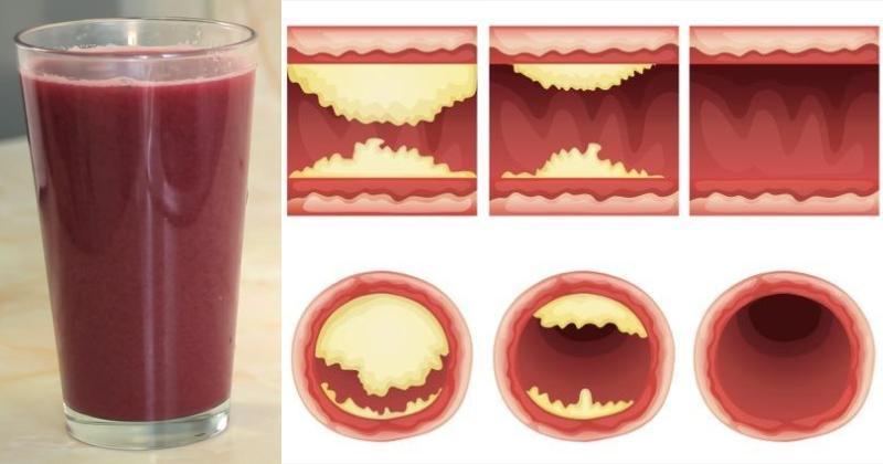 Ce jus décolle les artères et vous protège contre les maladies cardiaques … (RECETTE ET MODE D'EMPLOI)