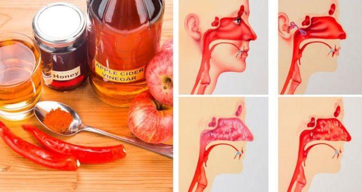 4 manières d'utiliser le vinaigre de cidre pour soigner