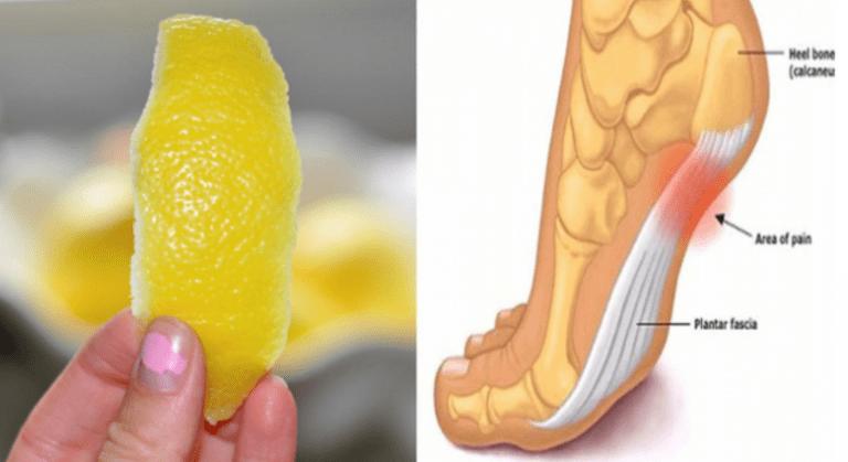 peel-lemon-can-remove-joint-pain-forever-min