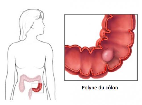 polypes-colon-2-500x370