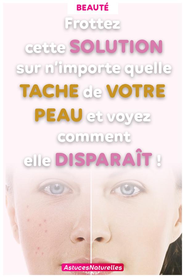 Frottez cette solution sur n'importe quelle tache de votre peau et voyez comment elle disparaît!