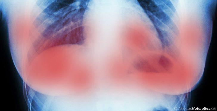 des scientifiques d 39 amsterdam ont limin plusieurs tumeurs du cancer du sein en 11 jours sans. Black Bedroom Furniture Sets. Home Design Ideas