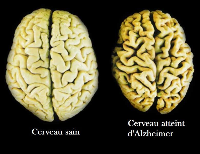 ameliyat-kan-nakli-ve-dis-tedavisinde-alzheimer-bulasabilir