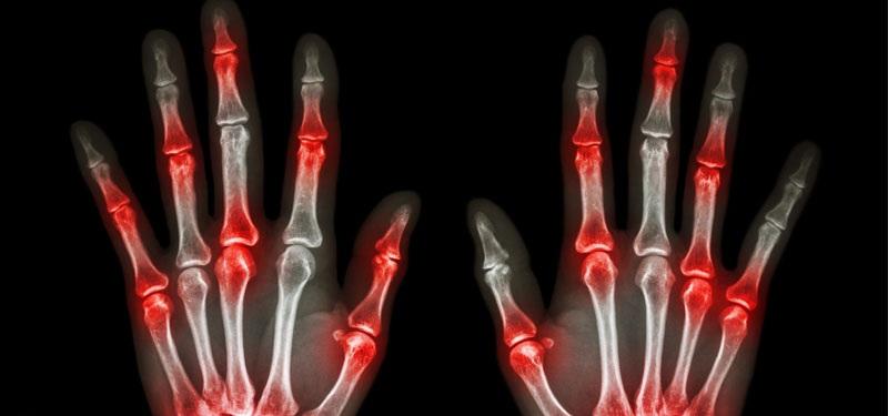 3 exercices de 10 secondes que toute personne souffrant d'arthrite doit effectuer chaque matin !
