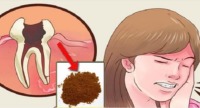 Voici comment soulager le mal de dent en un rien de temps, ce remède est juste incroyable !
