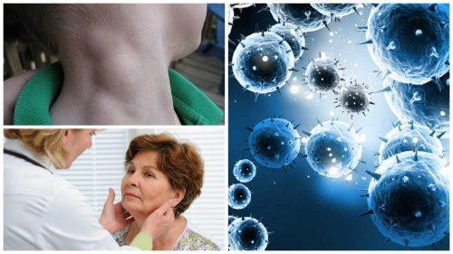 Le lymphome, un cancer silencieux qui peut être traité avec succès s'il est détecté à temps !