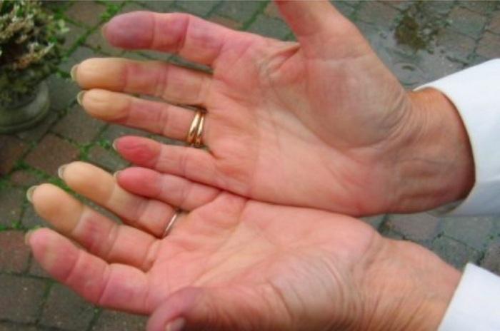 Remède naturel efficace pour traiter les symptômes du syndrome de Raynaud !