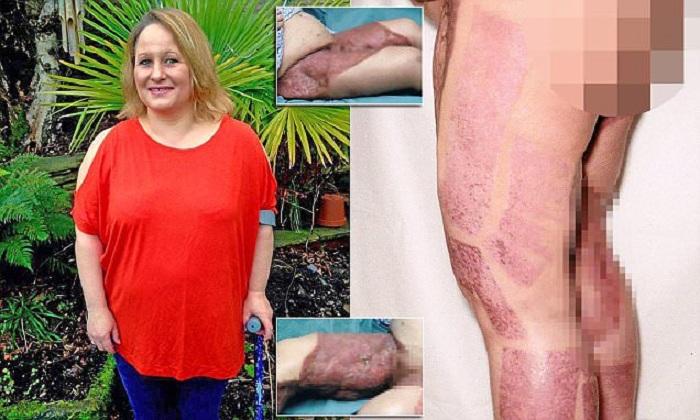 Une femme développe une infection mortelle et perd presque ses jambes après s'être rasé le poil pubien avec un nouveau rasoir