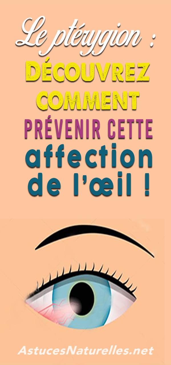 Le ptérygion : Découvrez comment prévenir cette affection de l'œil !