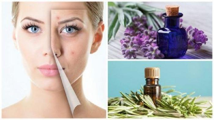 Nettoyez votre visage de l'acné avec ces puissantes huiles essentielles … Le résultat est Stupéfiant !!
