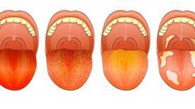 Si vous observez ces 12 signes sur votre langue, voici ce qu'ils révèlent sur votre santé …