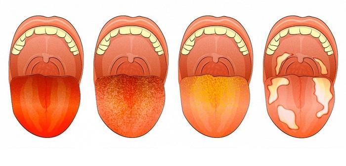 Si vous remarquez ces 12 signes sur votre langue, voici ce qu'ils révèlent sur votre santé.