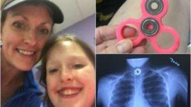 Après une opération chirurgicale subie par sa fille, cette maman met en garde contre ce jouet !!