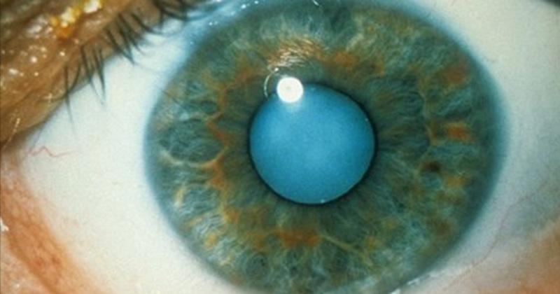 Comment utiliser l'huile de ricin pour dissoudre la cataracte et obtenir une meilleure vision…
