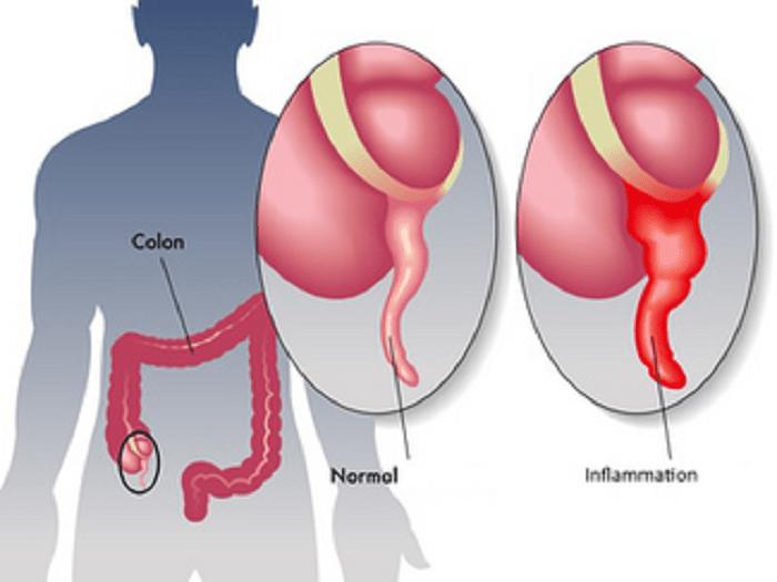 L'appendice est bien plus important que ce qu'on n'a cru au par le passé!